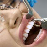 拔牙 – 深水埗牙科
