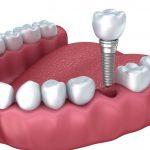 植牙 / 種牙 – 深水埗牙科